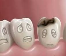 دندان کرم خورده