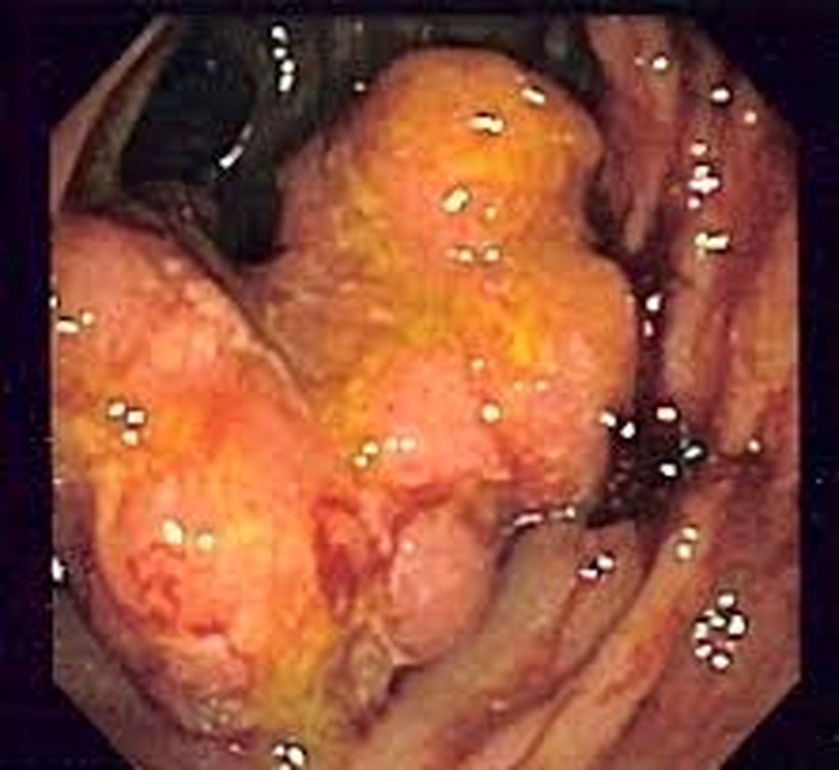 درمان سرطان روده پیدا شد+ جزئیات