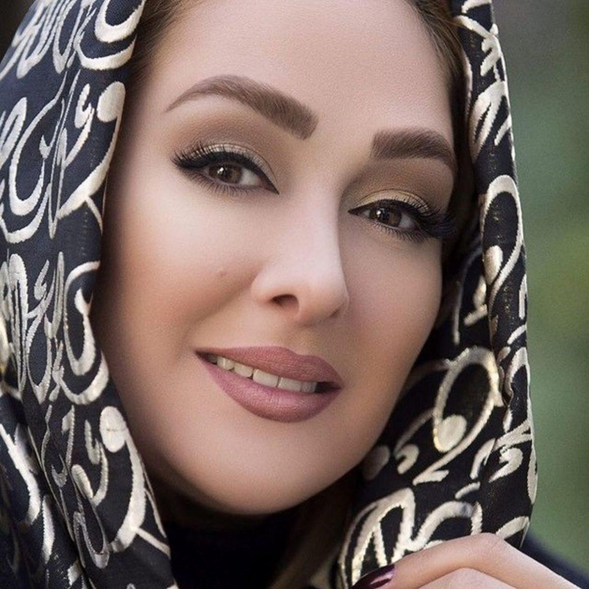 جراحی زیبایی الهام حمیدی بعد از زایمانش + عکس دیده نشده