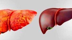 یک روش ساده گیاهی برای درمان