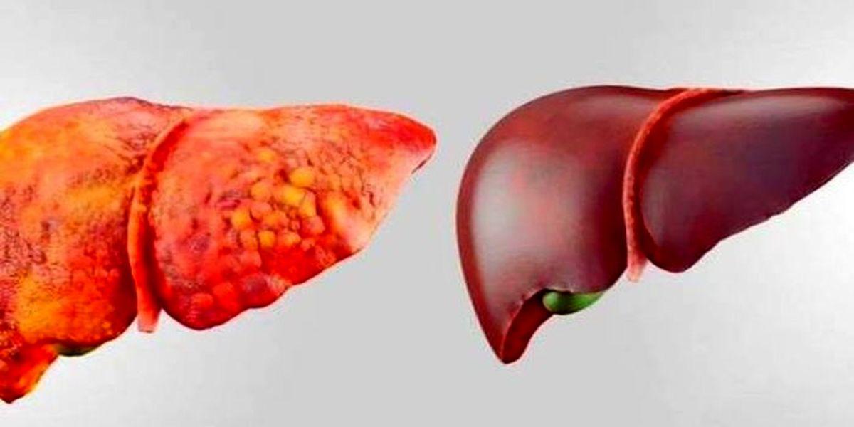 درمان کبد چرب با راه های خانگی/ 10 روش غلبه بر کبد چرب